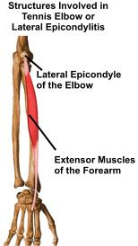 tennis_elbow_anatomy_2