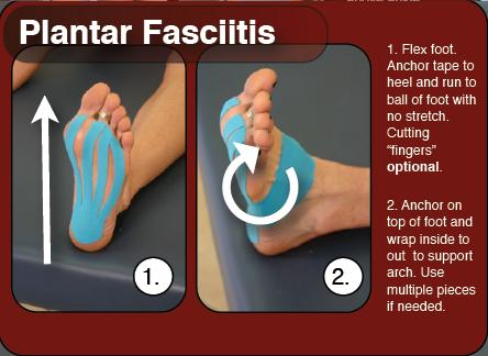 A Simple Way to Tape Plantar Fasciitis | Athletic Tape ...