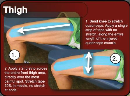 Kinesiology Taping for Thigh Injuries