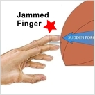 Finger Jam